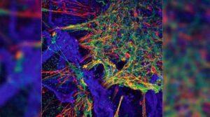 Neural Stem cell