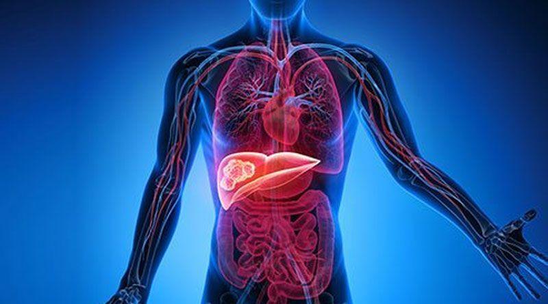 Liver Cancer Symptoms